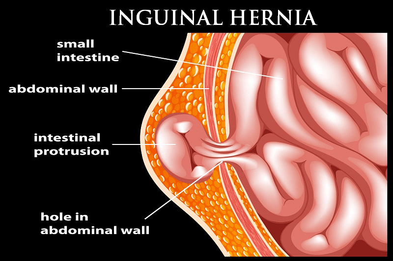 Inguinal hernia surgeon in Pune